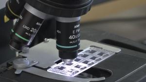 Laboratorium - badania, próbki [przebitki]