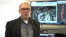 Druk 3D nadzieją onkologii. Polscy naukowcy wydrukowali trójwymiarowy model żyły zajętej nowotworem, co pozwoliło na skuteczną operację