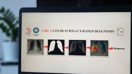 Stworzone w Polsce technologie rozpoznają koronawirusa na zdjęciu rentgenowskim czy tomografii komputerowej [DEPESZA] News powiązane z uczenie maszynowe