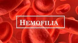 Hemofilia – co wiemy o tej chorobie?
